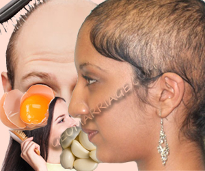 Hair Baldness Causes, Cure Tips, Treatment and Home Remedies